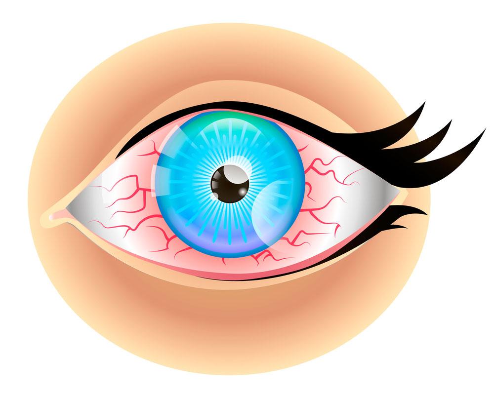 ojo seco rojizo
